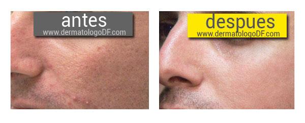 Los diferentes tipos de los tratamientos faciales Salud