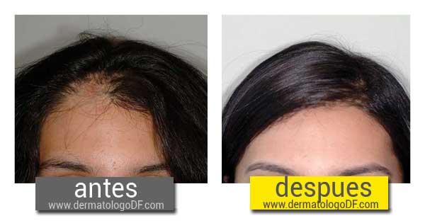 Medicamento caida del cabello mujer