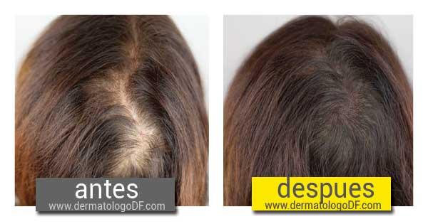 Que óleos etéricos ayudan de la grasura de los cabello